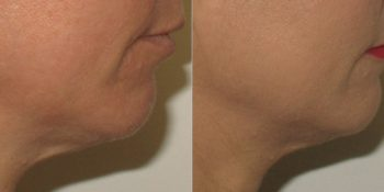 Profound Treatment for Face and Neck Tightening